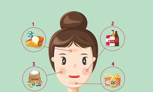 10 loại thực phẩm ăn nhiều sẽ khiến da nổi mụn