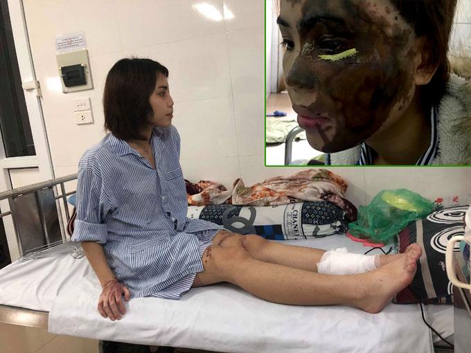 Vy tâm sự đã quen với những vết sẹo và không ngại diện váy với đôi chân đầy sẹo sau khi hồi phục. Ảnh nhỏ là gương mặt Vy trước khi được bác sĩ Vinh phẫu thuật.