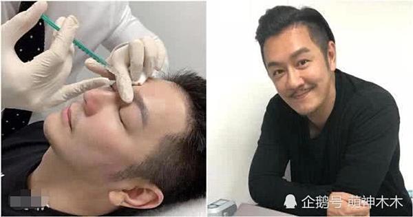 Tháng 4 vừa qua, nam diễn viên công khai hình ảnh đụng chạm dao kéo trên Weibo cá nhân với mục đích muốn sửa cặp lông mày bên cao bên thấp. Tuy nhiên, khán giả cho rằng, Trần Hạo Dần không chỉ phẫu thuật thẩm mỹ mỗi lông mày mà còn cắt mí, tiêm filler, độn cằm. Hiện tại,tài tử phải hứng chịu nhiều gạch đá sau khi xuất hiện với gương mặt cứng đờ.