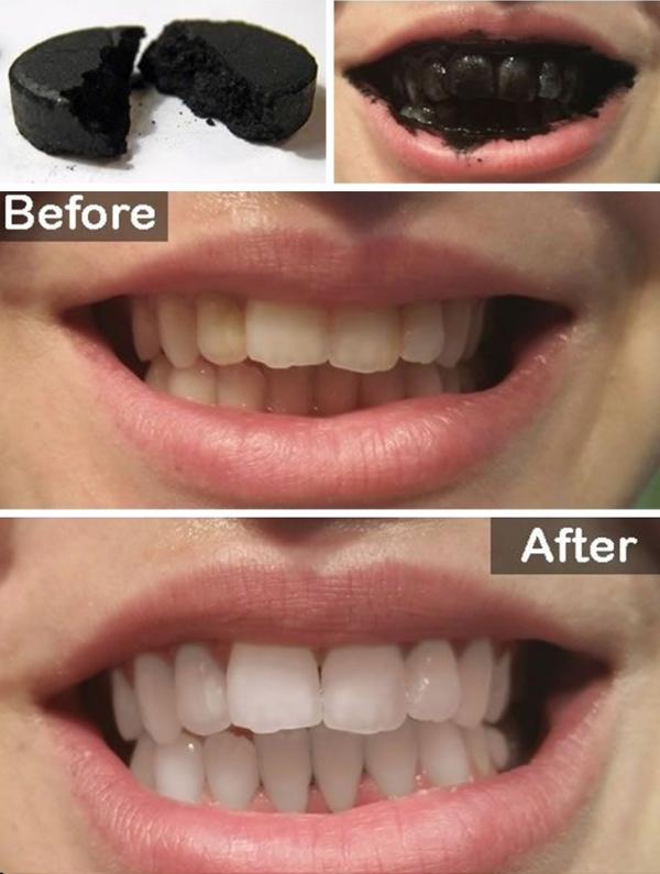 Tẩy trắng răngTrà, cà phê hay đồ ăn khiến răng bạn bị ố vàng. Không cần tốn tiền tới nha sĩ để tẩy trắng răng, bạn có thể dùng vài viên than hoạt tính, hòavới nước rồi dùng để đánh răng vài lần trong tuần. Bạn sẽ thấy răng trắng sáng hơn hẳn.