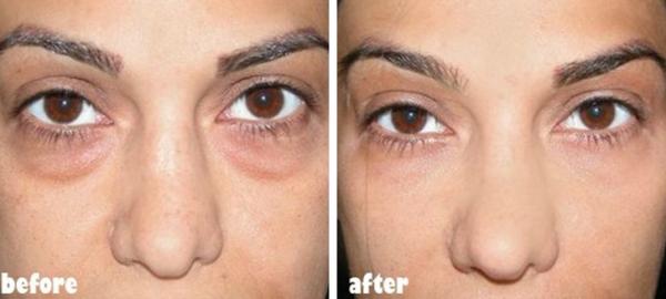 Trị quầng thâm dưới mắt Để làm mờ quầng thâm dưới mắt, bạn chỉ cần dùng hai lát khoai tây thái mỏng, để trong tủ lạnh khoảng 30 phút đắp lên mắt. Sau 15 phút, bạn sẽ thấy vùng da này cải thiện rõ rệt.