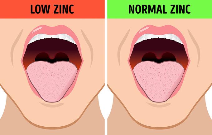 8 điều cơ thể muốn cảnh báo khi bạn thấy vị lạ trong miệng
