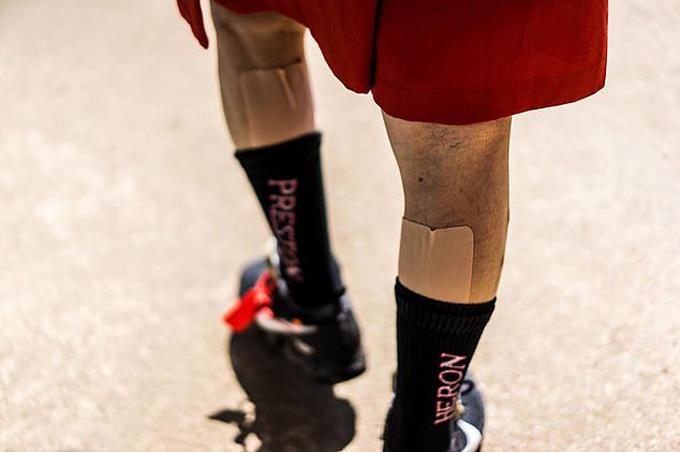 Đôi chân dán đầy cao vì đau cơ bắp do làm nông của cụ Tetsuya. Ảnh: Instagram.