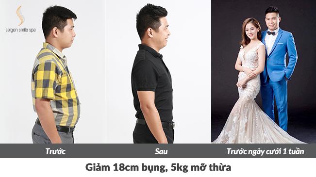 Doanh nhân Trần Minh và vợ rạng rỡ trong bộ ảnh cưới sau khi rủ nhaugiảm béo thành công. Nhiều chị em phụ nữ béo sau sinh, béo bẩm sinh, tăng cân đột ngột ở tuổi trung niên cũng đã giảm 4-8kg nhờ phương pháp này. Xem thêm tại đây.