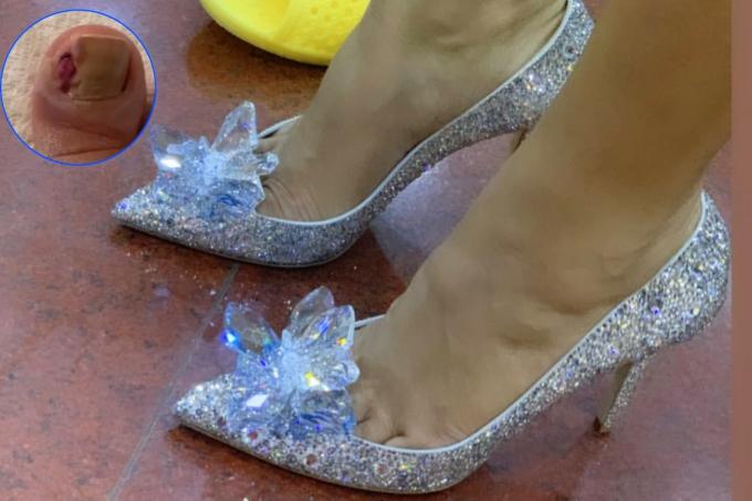 HHen Niê tiếc không thể mang giày 5000 USD vì ngón chân mưng mủ - 1