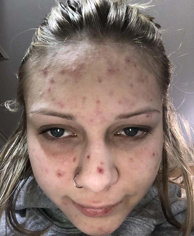 Zoe có làn da khô, nổi nhiều mụn.