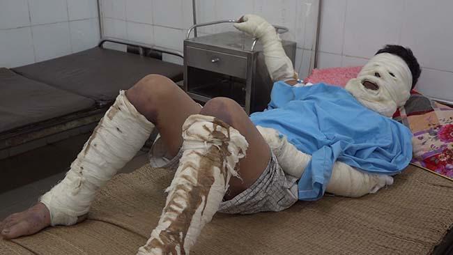 Một trong hai nạn nhân bị bỏng nặng đang điều trị tại Bệnh viện Đa khoa huyện Thạch Thành.