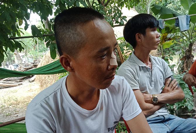 Anh Phạm Hồng Cấp con trai ông Văn bị chém vào mặt. Ảnh: Sơn Thủy.