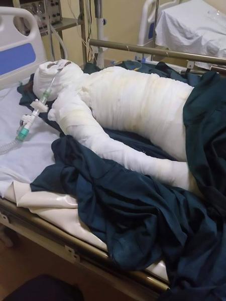 Loas Sreyne bị bỏng quá nặng và qua đời trong bệnh viện. Ảnh: