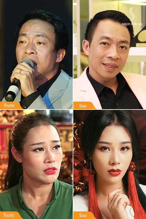 Cũng giống như Hồng Đăng, Việt Anh, ca sĩ Việt Hoàn đến với Saigon Smile Spa đểthay đổi, xóa đi những nếp nhăn do năm tháng, làn da căng mịn hơn trước mà vẫn không mất đi những nét riêng của người nghệ sĩ.Vợ anh, ca sĩHoa Trần cũng xóa nhăn, tiêu nọng cằmnhờ Ultherapy tại Saigon Smile Spa.