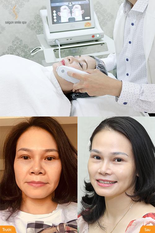 Thạc sỹ khoa học – Viện hàn lâm Khoa học & Công nghệ VN Mai Bùi 35 tuổi biết đến công nghệ nâng cơ, tạo mặt V-line Ultherapy này nhờ người bạn ở Mỹ.