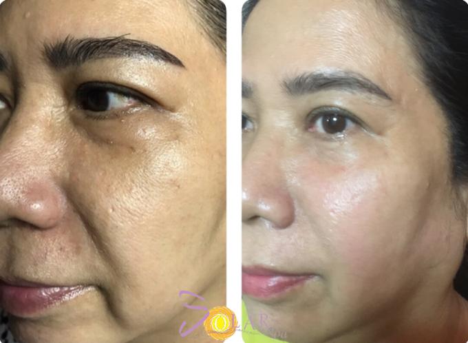 Làn da của khách trẻ trung hơn nhiều sau trị liệu Thermage FLX 4.0.