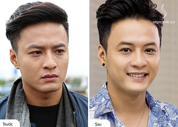 Diễn viên Hồng Đăng vai diễn Khánh Búa trong
