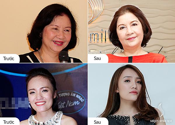 Ảnh 9: NSUT Thu Hiền, U70 và ca sỹ Nhật Thủy đều hài lòng với kết quả đạt được sau trị liệu Ultherapy kết hợp Thermage. Không chỉ khắc phục mặt vuông, da chùng chảy mà còn tái tạo làn da săn chắc, trẻ hơn tuổi thật. Xem thêm hình ảnh chân thực tại đây.