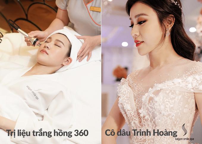 Trinh Hoàng chọn làm đẹp da bằng phương pháp trắng hồng 360 độ. Đây cũng là bí quyết giúp cô thêmnổi bậttrong ngày cưới. Xem chi tiếttại đây.