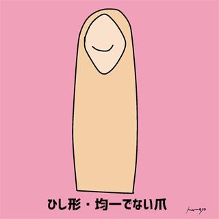 Hình dáng móng tay tiết lộ bản chất của bạn - 6