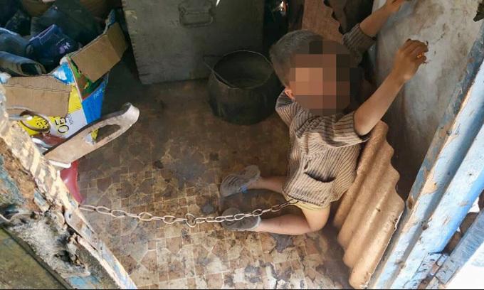 Cậu bé bị xích bằng dây sắt trong nhà mình hôm 27/6. Ảnh: Police of Ukraine.