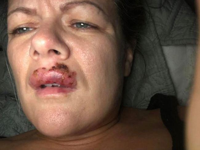 Thắc mắc với người bơm môi, Lindsay được cô này trấn an và cho vài viên kháng sinh.