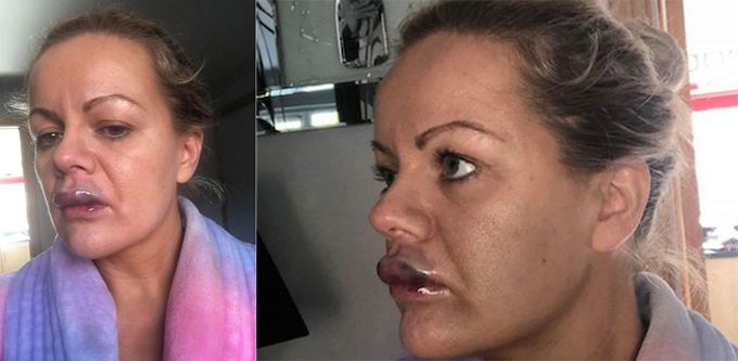 Sau khi tiêm 1 ml botox, môi của Lindsay nhanh chóng chuyển sang màu xanh rồi sưng to.
