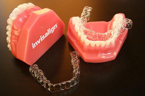 Xóa tan nỗi ám ảnh niềng răng với miệng cười toàn...inox - 1
