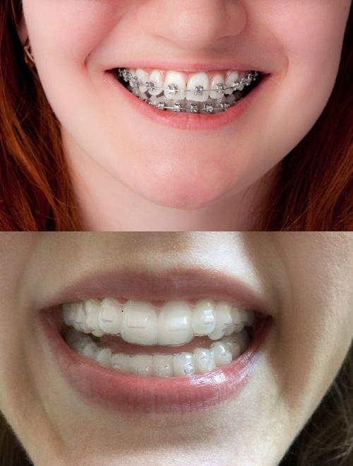 Khay niềng trong suốt giúp hàm răng niềng không bịchú ý.