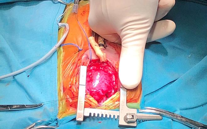 Qủa tim của bé gái có kích thước tương đương ngón tay cái của bác sĩ.