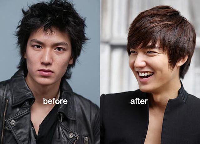 Nhiều nguồn tin cho rằng Lee Min Ho đã phẫu thuật thẩm mỹ rất thành công.