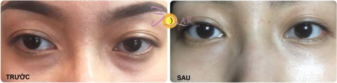 Cách cải thiện quầng thâm mắt, giảm bọng mỡ mắt với một liệu trình - 2