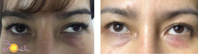 Quầng thâm quanh mắtkhó biến mất, với nhiều trường hợp còn trở nên đậm màuvà lan rộng nếu không xử lý sớm.
