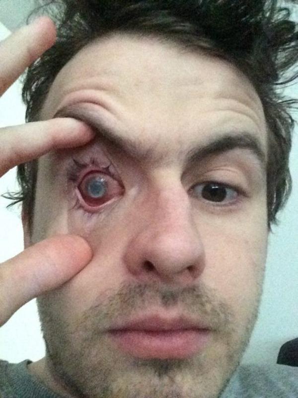Sau khi thay giác mạc, tình trạng nhiễm trùng được cải thiện nhưng vẫn không thể cứu được con mắt phải của Nick.