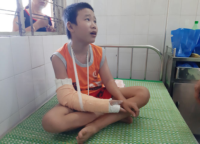 Linh đang điều trị ở Khoa ngoại, Trung tâm Y tế huyện Quế Sơn. Ảnh: Sơn Thủy.