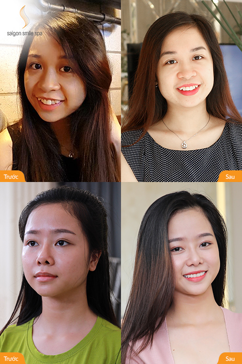 Nhiều người nổi tiếng chọn Saigon Smile Spa làm địa chỉ làm đẹp quen thuộc.