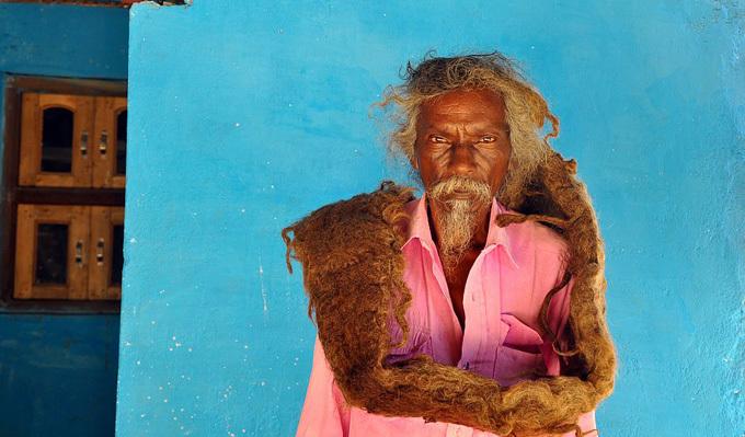 Hiện ông Sakal được nhiều người biết đến như một thầy thuốc truyền thống và chữa bệnh bằng những loại thuốc do ông tự sáng tạo ra để giúp các cặp vợ chồng vô sinh. Mặc dù nhiều người ở xa tò mò tìm đến tận nhà để chụp ảnh, ông Sakal vẫn tiếp đón họ với thái độ nhã nhặn, lịch sự.
