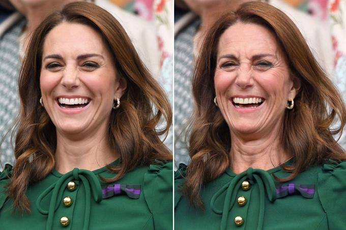Mới 37 tuổi nhưng Kate đã có rất nhiều nếp nhăn quanh miệng khi cô cười lớn. Vì vậy, người hâm mộ cho rằng khi về gia, Kate sẽ đầy nếp nhăn khắp mặt và cổ, giống bà Camilla hiện tại.