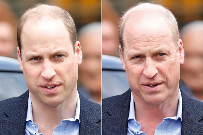 Trong tưởng tượng của người hâm mộ, Hoàng tử William sẽ ngày càng hói nặng, nếp nhăn sẽ tập trung trên trán và quanh mắt của nhà vua tương lai.