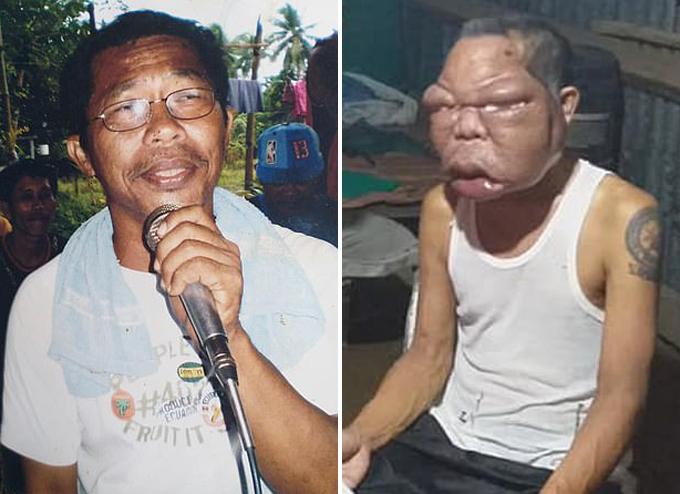 Ông Romulo ở đảo Leyte, Philippines trước và sau khi mắc bệnh lạ khiến mặt sưng to bất thường. Ảnh: ViralPress.