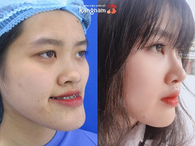 Gương mặt với chiếc cằm quá khổ, sống mũi thấp, hai mắt không đều của Mai Anh được chỉnh sửa toàn diện sau 2 lần đại phẫu