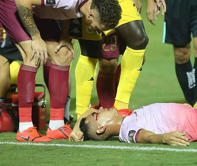 Trịnh Đức Lợi nằm bất tỉnh, chảy máu ở vùng mắt sau pha va chạm với đồng đội Gustavo. Ảnh: Sài Gòn FC.