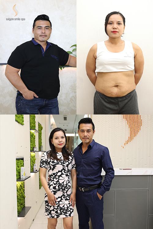 Vợ chồng anh Hoàng, chị Trang đã lấy lại vóc dáng và sức khỏe. Cặp đôi còn may mắn được Saigon Smile Spa tài trợ tớichi phí và tặng miễn phí trị liệu tạo Form trị giá 3 triệuđồng.Nhiều trường hợp khác cũng đã giảm béo thành công nhờ US Fusion. Xem tại đây.