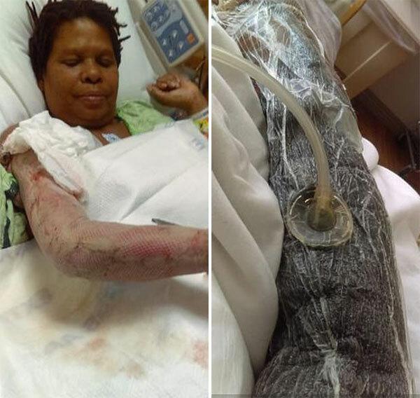Chị Beverly điều trị cánh tay phải bị vi khuẩn ăn thịt xâm nhập tại bệnh viện ở Nam California, Mỹ. Ảnh: Roy Willey.