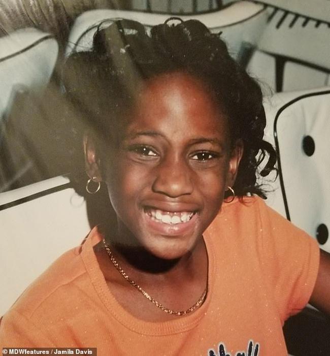 Jamila phát hiện đốm da bất thường gần mắt khi còn là một bé gái.