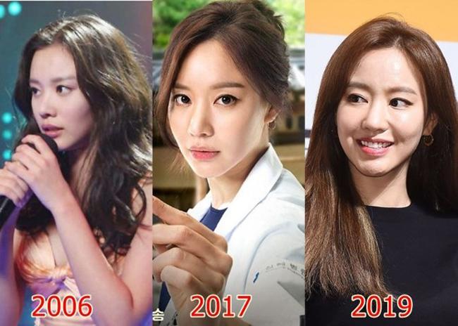 Sự biến đổi nhan sắc của Kim Ah Joong.