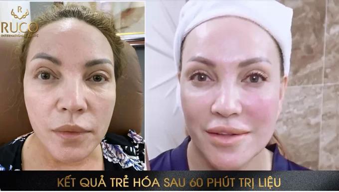 Sự khác biệt của Thanh Hà trước và sau khi thực hiện Thermage FLX.