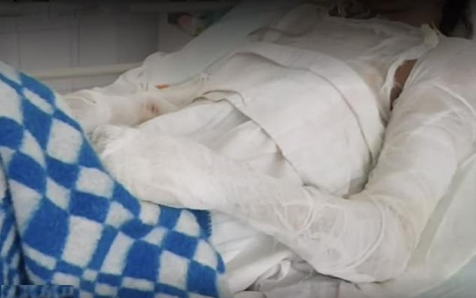 Cơ thể bị bỏng phải băng bó của Anastasia Shapovalova - người phụ nữ Ukraine bị chồng tạt nước sôi. Ảnh: East2west News.