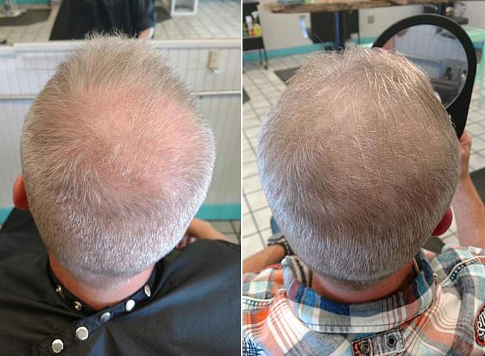 Tóc của ông Brian có sự thay đổi sau hai tháng ông uống nước tiểu theo lời khuyên của bạn gái. Ảnh: SWNS.