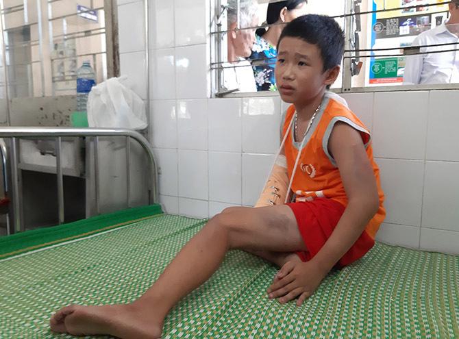 Linh bị gãy tay và thâm tím cơ thể, đang điều trị tại Trung tâm y tế huyện Quế Sơn. Ảnh: Đắc Thành.