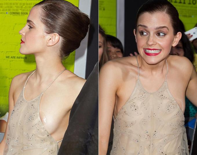 Nàng phù thủy Emma Watson từng trải qua cảm giác xấu hổ tại buổi công chiếu phim The Perks of Being a Wallflower do miếng dán ngực hiện rõ trước ống kính.