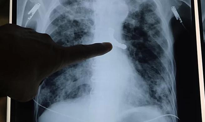 Phim chụp X-quang phát hiện cầu răng giả trong phế quản bệnh nhân. Ảnh: Tạ Khánh.