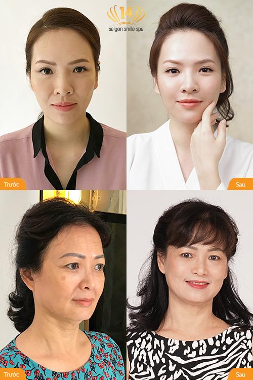 Diễn viên Đan Lê đưa mẹ đi làm đẹp bằng công nghệ trẻ hóa da tại Saigon Smile Spa. Sau 60 phút trị liệu, hai mẹ con đều nhận thấy da căng mọng, láng mịn, rãnh cười được lấp đầy, cằm V-line lộ rõ. Cả Đan Lê và cô Bích Thủy đều vô cùng hài lòng với kết quả hiện tại. Xem thêm tại đây.