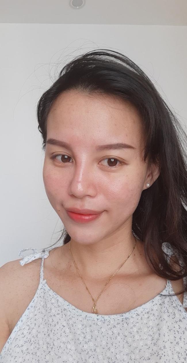Hiện da của Trang đã đỡ tổn thương hơn trước, cô tập trung vào công đoạn trị thâm sau mụn.